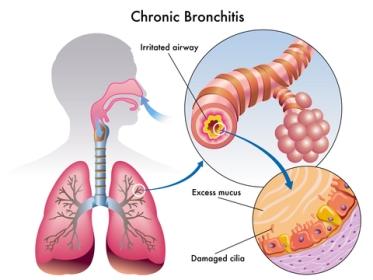 Bronchitis Home Remedies