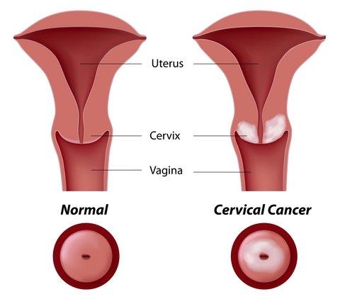 Consenso sobre infec    o hpv e les  es intraepiteliais do colo  vagina     Relaci  n del HPV con el C  ncer de Cuello Uterino  vagina  vulva  pene  ano   recto  boca  HPV en la mujer embarazada  recomendaciones