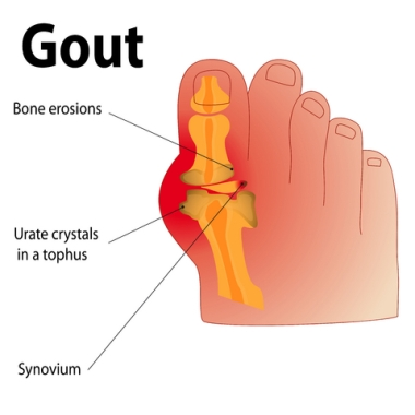 foods that contain high uric acid levels treating acute gout flares good soup for gout