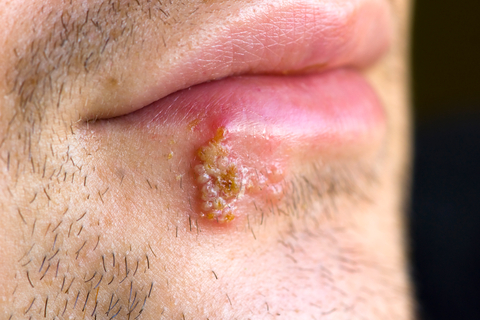 Fever blisters, shingles, chicken pox and genital herpes are different forms of the herpes virus 2