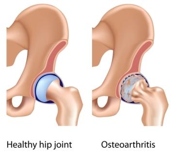 Natural Remedies Arthritis Hip Joint